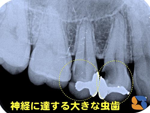 レントゲンで虫歯をチェック