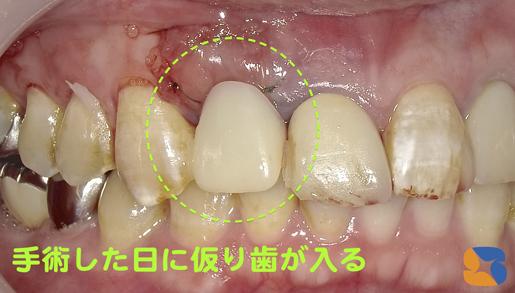 インプラントを植立して仮の歯も乗せる