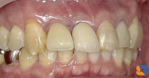 抜歯から3ヶ月後にセラミックの前歯が完成