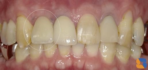入れ歯の根源はブリッジ治療にある