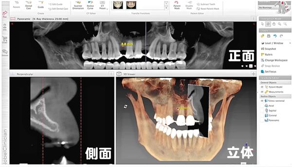 ティース teethナビゲーション