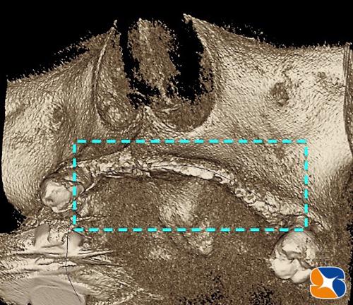 前歯の骨が薄くなっている 静脈麻酔鎮静法 奈良 生駒 無痛 恐くないインプラント手術