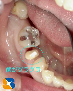 静脈麻酔鎮静法 生駒 奈良 石切 インプラント