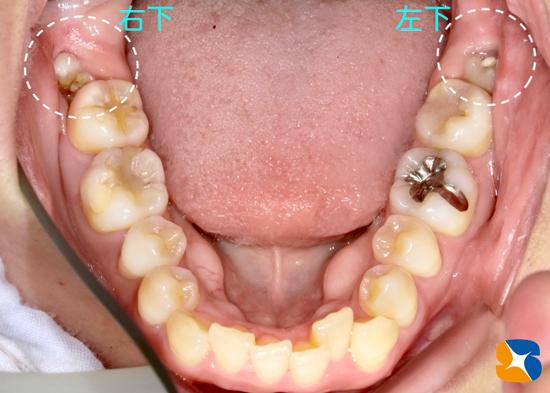 保険 静脈鎮静法を使った横向き親知らずの抜歯