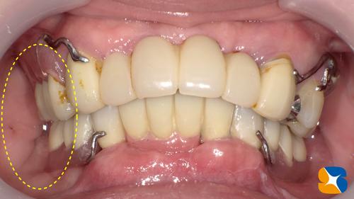 よく噛める入れ歯
