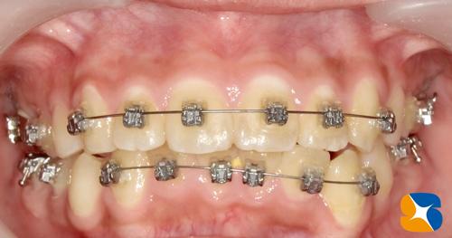 矯正中の虫歯