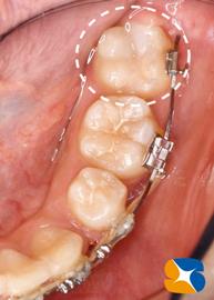 矯正器具そのままで虫歯治療