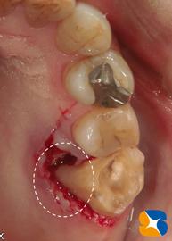 歯を2つに割って残りを残す