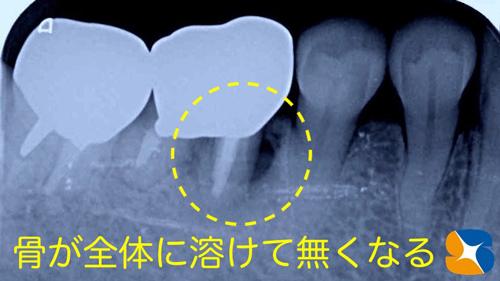 奈良 生駒 石切 大阪 痛くない怖くない再生医療インプラント