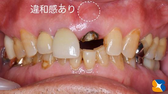 インプラント 奈良 生駒 大阪 静脈麻酔鎮静 無料 最新治療 再生医療