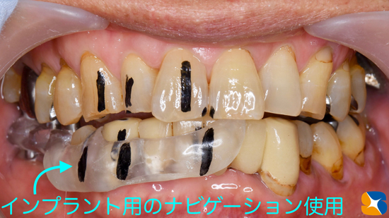 奈良 生駒 石切 インプラント 寝ながら無痛インプラント 良心価格 10年保証 再生医療