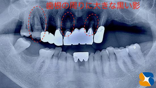 笑気 静脈麻酔 無痛抜歯 歯科再生医療 奈良 生駒 大阪 石切
