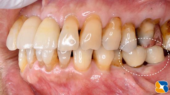 生駒 奈良 大阪 静脈麻酔付きインプラント 骨や歯茎の早期再生療法