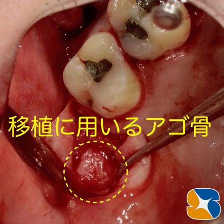 プロフェッショナル 鈴木歯科 ブリッジ インプラント 静脈麻酔鎮静付き手術 フィブリン再生医療 奈良 生駒 大阪