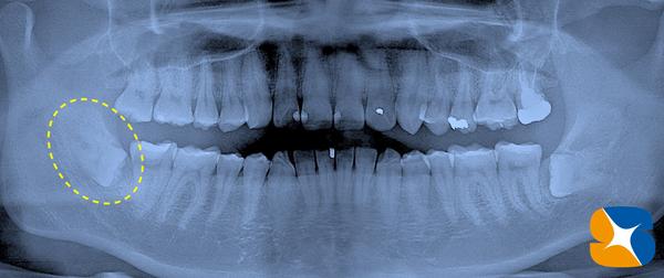 石切 学園前 生駒 富雄 親知らず 痛く無い 怖く無い 保険で寝ながら静脈麻酔鎮静抜歯 抜歯後は再生治療付き
