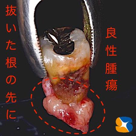 大阪 奈良 生駒 抜歯後の最先端再生医療 インプラント 保険で寝ながら静脈麻酔鎮静 歯科恐怖症