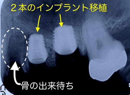 大阪の歯医者 良心価格 奈良市 生駒市 大和郡山市 東大阪市 インプラント 先進医療の再生治療 骨の再生 怖くない点滴麻酔 静脈麻酔鎮静 手術は1回 短期間