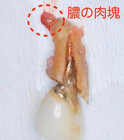 インプラントを受けられる方は寝ながら点滴麻酔鎮静は無料 東大阪 奈良市 生駒市 骨の先端再生治療