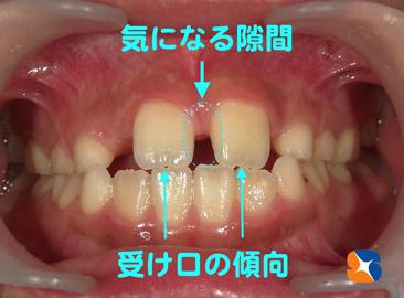 受け口 前歯の隙間