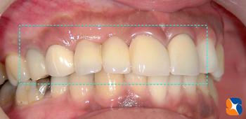 昔は銀歯、今は白い歯が保険で可能