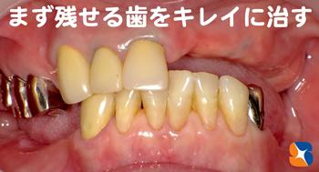 まず残っている歯を美しく