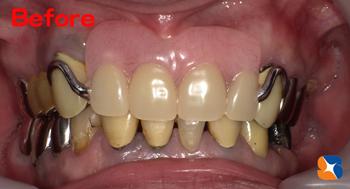 鼻の下まで延びた大きな入れ歯