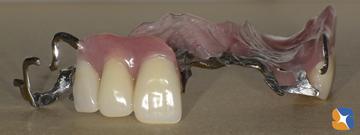 保険料金で自費のデザイン入れ歯