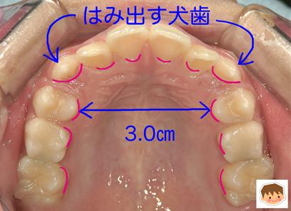 犬歯が八重歯に