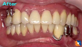 痛くない快適な入れ歯