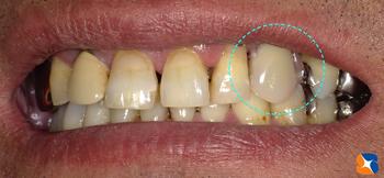 入れ歯に見えなデザイン入れ歯