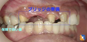 保険で銀歯は昔。今は保険で白い歯を入れることが可能