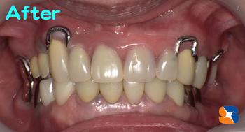 小さく目立たない入れ歯を保険で作る