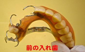 ごく一般的な保険の入れ歯