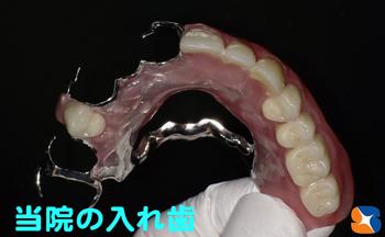 保険で手に入れる事が出来る最高級の入れ歯