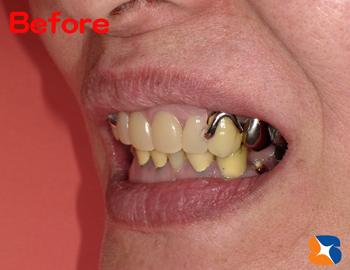 ギラギラ目立つ入れ歯のため、まともに笑えない