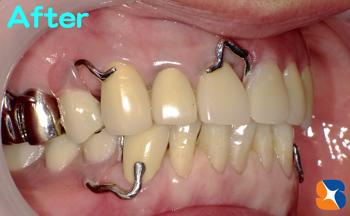完璧な前歯と入れ歯