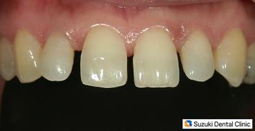 加齢による前歯の開き