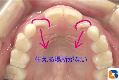 窮屈で前歯がうまく並びません