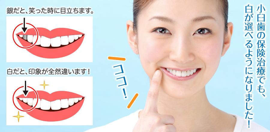 小臼歯の保険治療でも、白が選べるようになりました!