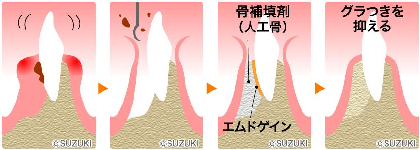 一般歯科・歯茎の手術 | 東大阪/石切駅前・徒歩1分 Newスタイル ...